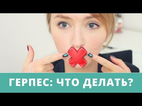 Самые эффективные лекарства для лечения герпеса на губах: таблетки и мази