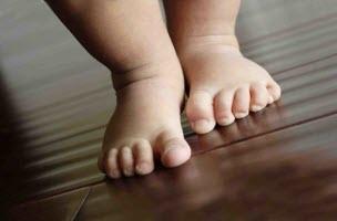 Сухая кожа у ребенка