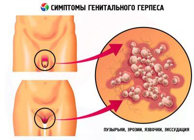 Генитальный герпес
