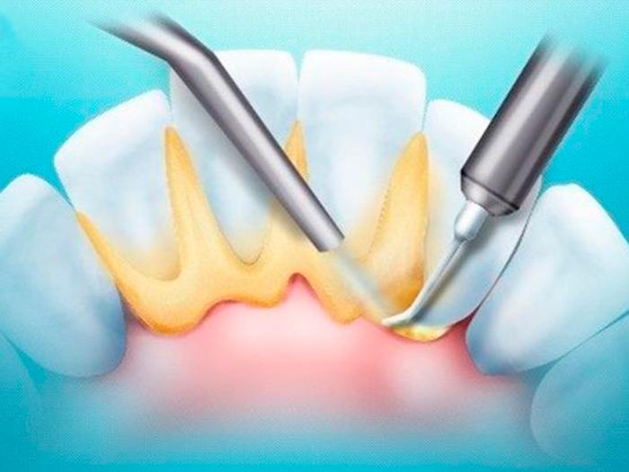 Признаки и лечение заболеваний полости рта