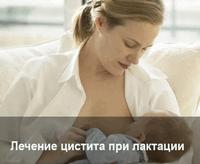 Чем лечить цистит при кормлении грудью