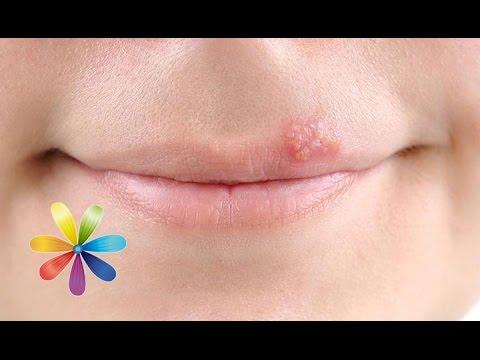 Описание проявления герпеса на щеке: особенности течения болезни, лечение