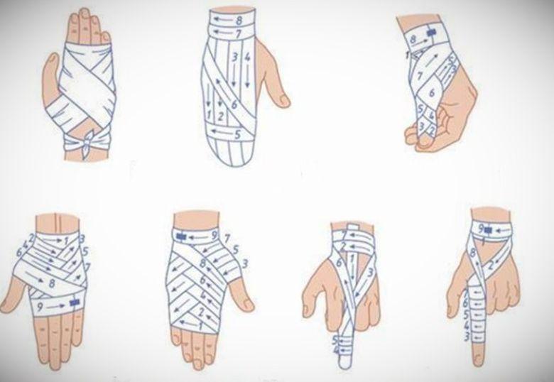 Как забинтовать палец на руке и на ноге