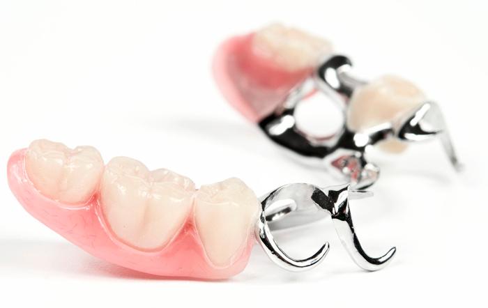 Зубные протезы без неба