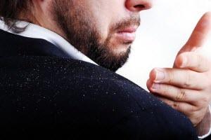 Причины появления перхоти у мужчин