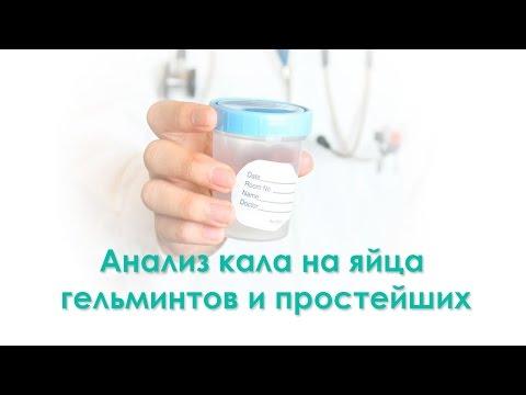Методы диагностирования энтеробиоза у человека