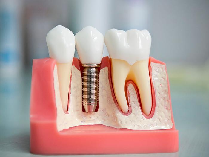 Последствия неудачной имплантации зубов