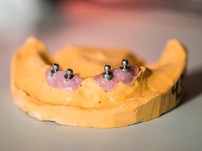 Адентия полное или частичное отсутствие зубов