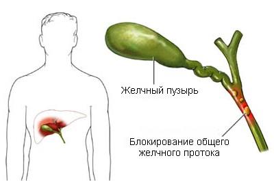 Холангит