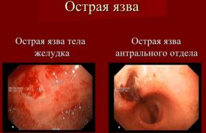 Язва желудка, фото изнутри