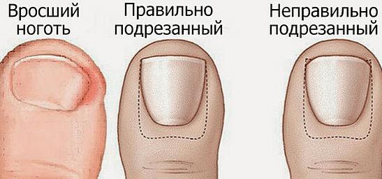 Как лечить вросший ноготь на ноге в домашних условиях