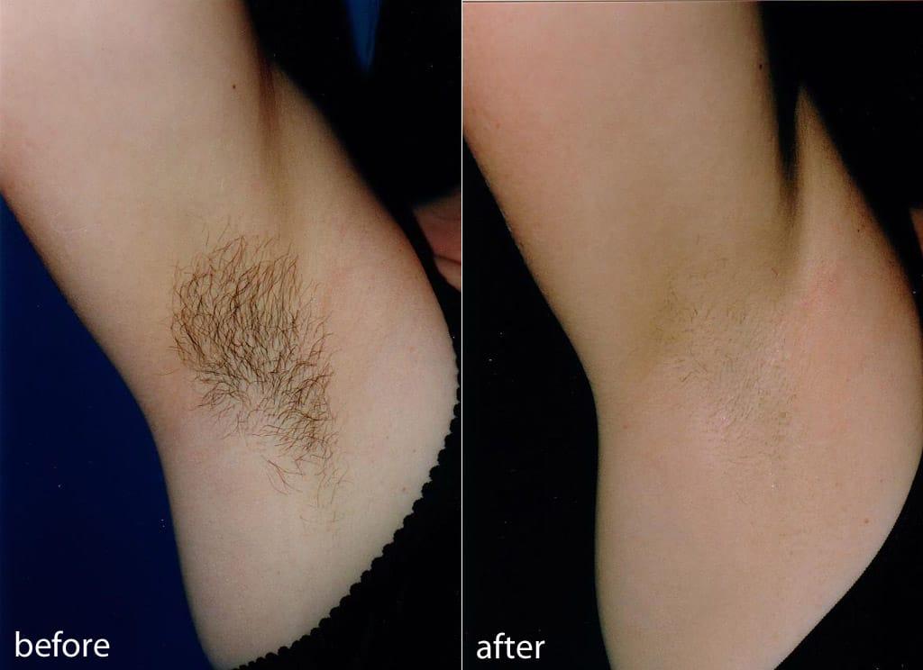 Удаление волос в зоне подмышек с помощью лазерной эпиляции