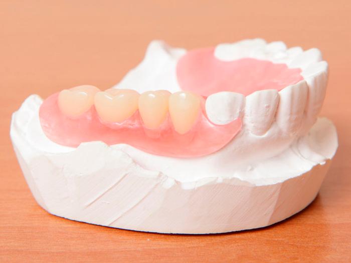 Как делают зубные протезы