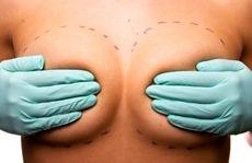 увеличение груди с macrolane