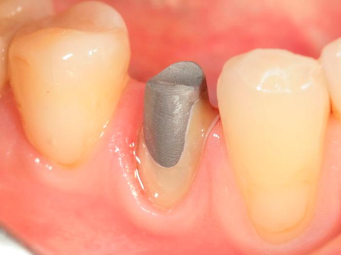 Виды и преимущества зубных вкладок