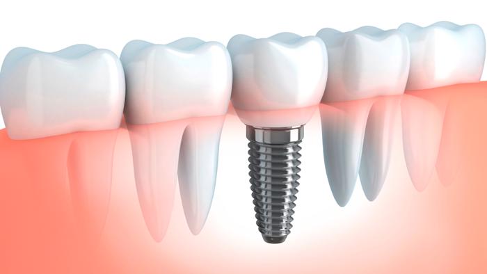 Рейтинг лучших зубных имплантов и клиник