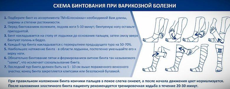 Как правильно бинтовать ногу эластичном бинтом при варикозе